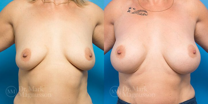 Breast_Lift_4_