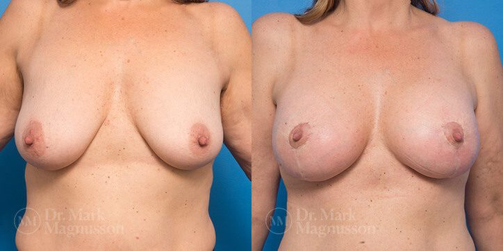 Breast_Lift_5_
