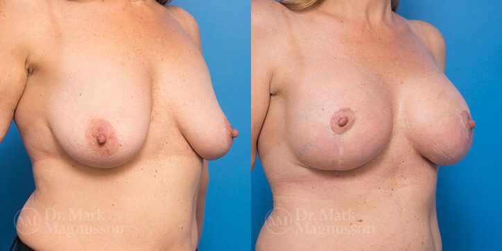 Breast_Lift_6_