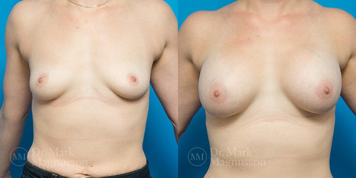 Breast_Lift_7_