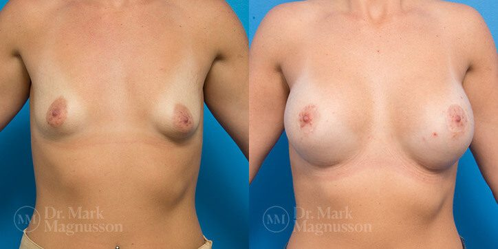 Breast_Lift_8_