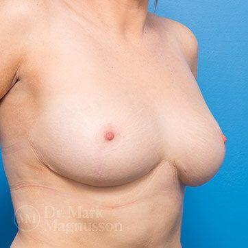Breast_Reduction01_ba_after_