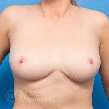 Breast_Reduction01b_ba_after_