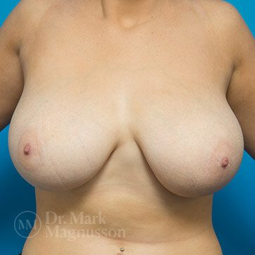 Breast_Reduction01b_ba_before_