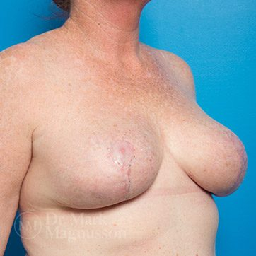 Breast_Reduction02_ba_after_