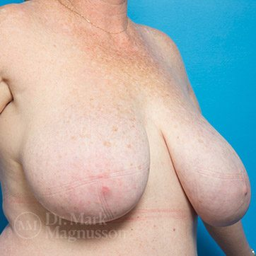 Breast_Reduction02_ba_before_