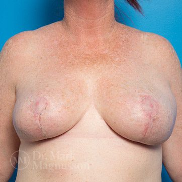 Breast_Reduction02b_ba_after_