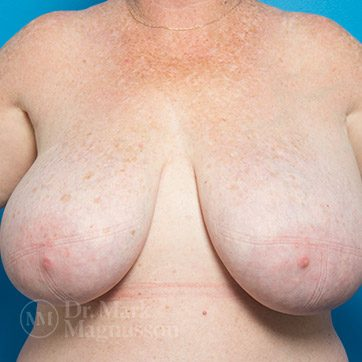 Breast_Reduction02b_ba_before_