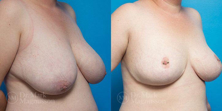 Breast_Reduction_10_