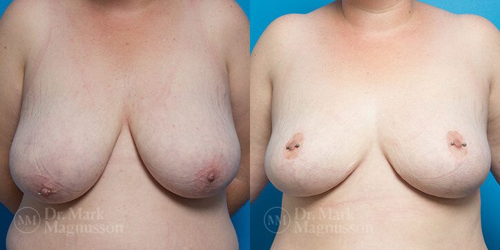 Breast_Reduction_11_