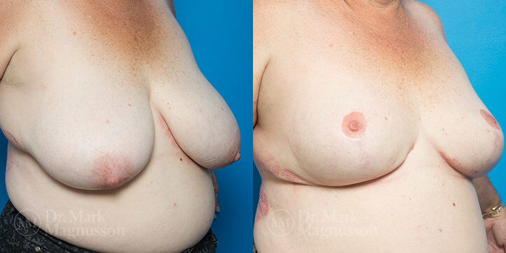 Breast_Reduction_12_