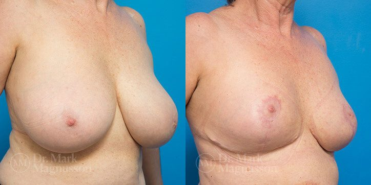 Breast_Reduction_13_