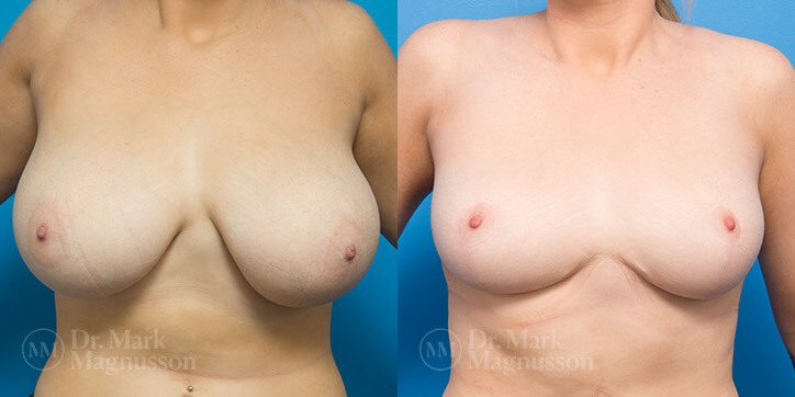 Breast_Reduction_14_
