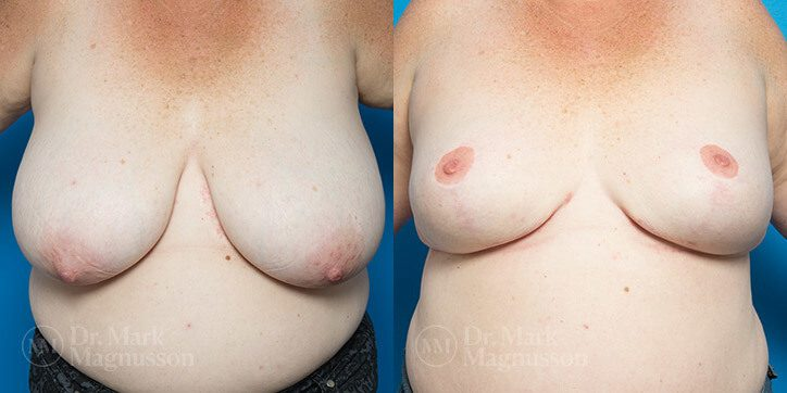 Breast_Reduction_15_