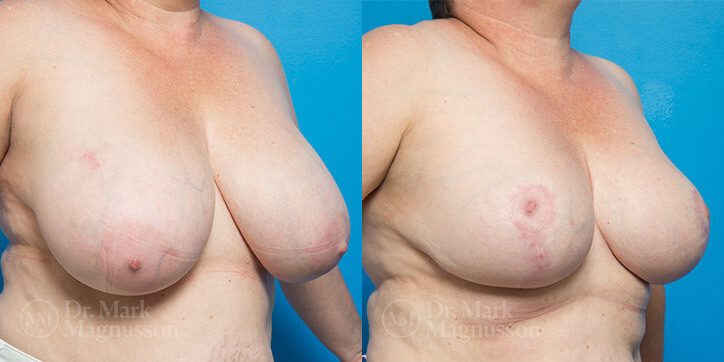 Breast_Reduction_16_