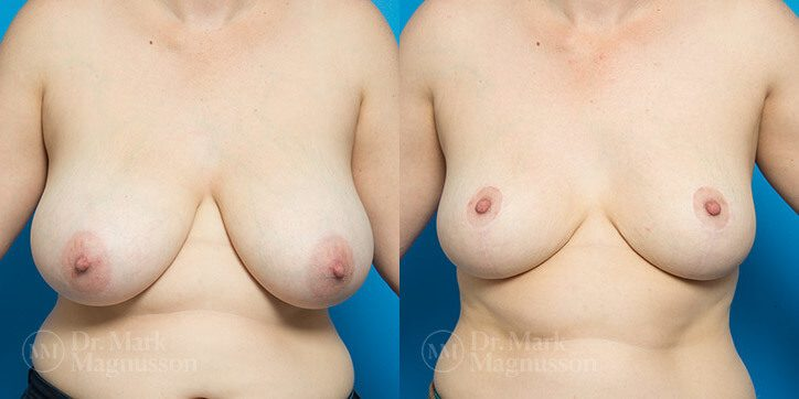 Breast_Reduction_17_