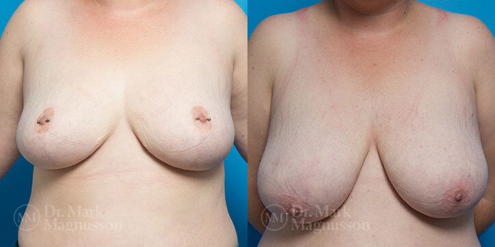 Breast_Reduction_18_