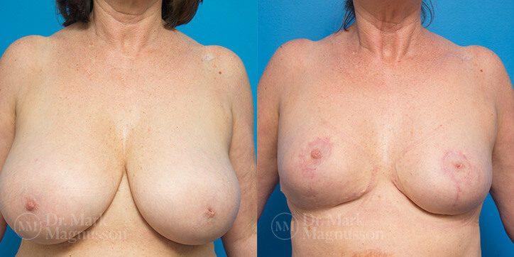 Breast_Reduction_1_