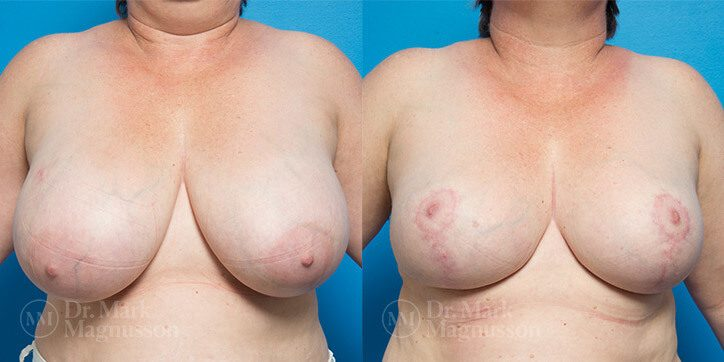 Breast_Reduction_2_