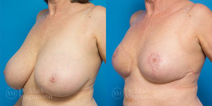 Breast_Reduction_3_