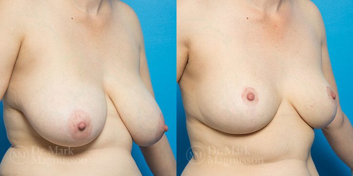 Breast_Reduction_4_