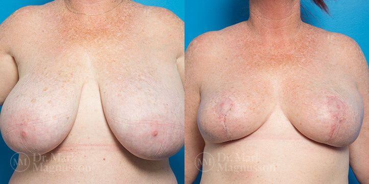 Breast_Reduction_5_