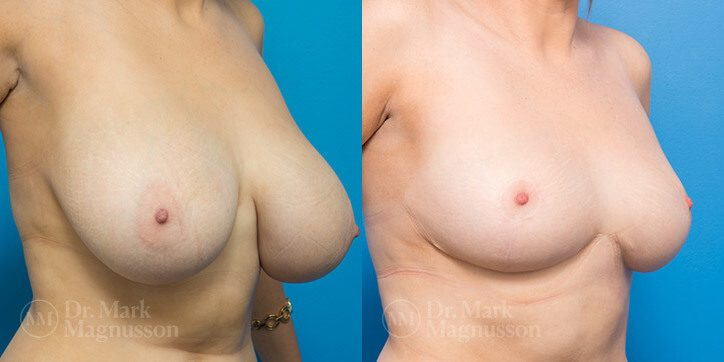 Breast_Reduction_6_