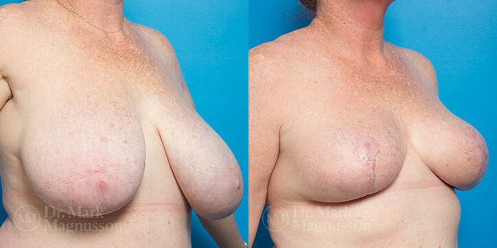 Breast_Reduction_7_