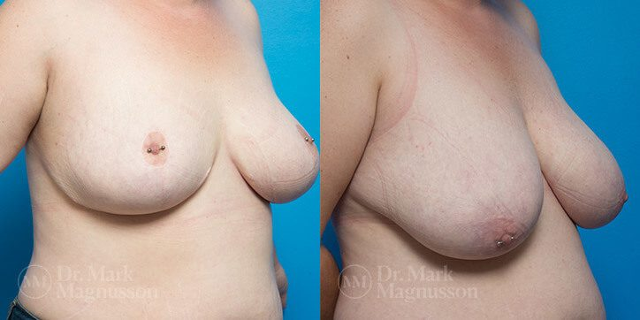 Breast_Reduction_8_