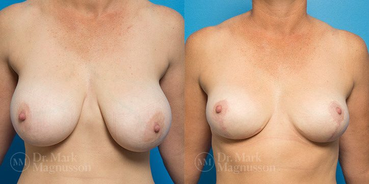 Breast_Reduction_9_