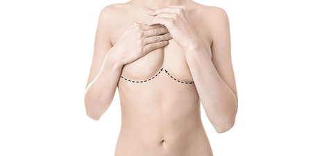 breast revision & breast implants removal - banner - dr magnusson