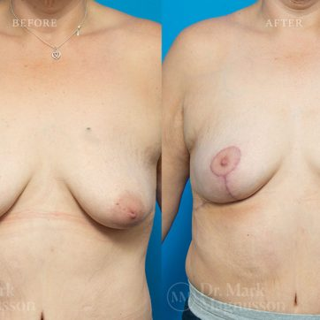 Breast_Reconstruction-Asymmetry_After_Breast_Cancer_Treatment_001@2x