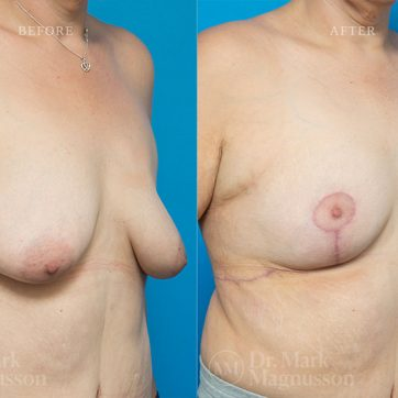 Breast_Reconstruction-Asymmetry_After_Breast_Cancer_Treatment_002@2x