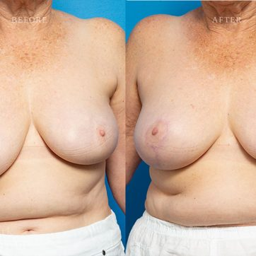 Breast_Reconstruction-Asymmetry_After_Breast_Cancer_Treatment_003@2x