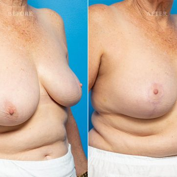 Breast_Reconstruction-Asymmetry_After_Breast_Cancer_Treatment_004@2x