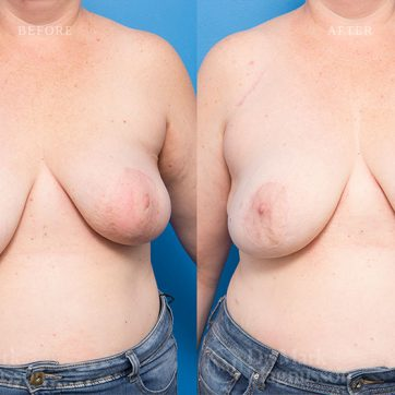 Breast_Reconstruction-Asymmetry_After_Breast_Cancer_Treatment_005@2x
