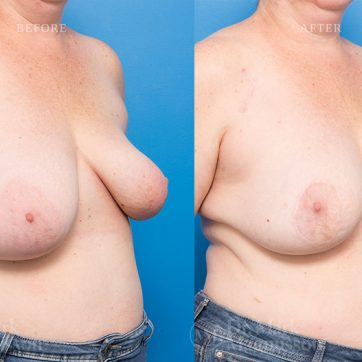 Breast_Reconstruction-Asymmetry_After_Breast_Cancer_Treatment_006@2x