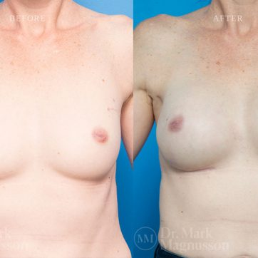 Breast_Reconstruction-Composite_Breast_Reconstruction_001@2x