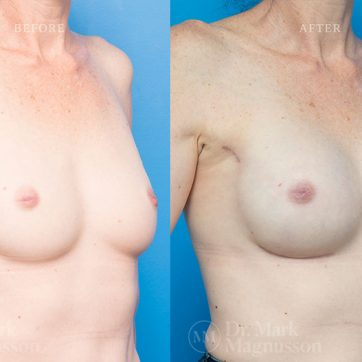 Breast_Reconstruction-Composite_Breast_Reconstruction_002@2x