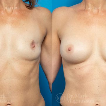 Breast_Reconstruction-Composite_Breast_Reconstruction_003@2x