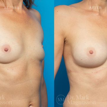 Breast_Reconstruction-Composite_Breast_Reconstruction_004@2x
