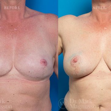 Breast_Reconstruction-Composite_Breast_Reconstruction_006@2x