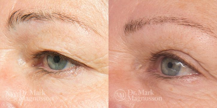 Brow_Lift__Eyelid_Surgery_1_new1