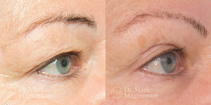 Brow_Lift__Eyelid_Surgery_2_new_