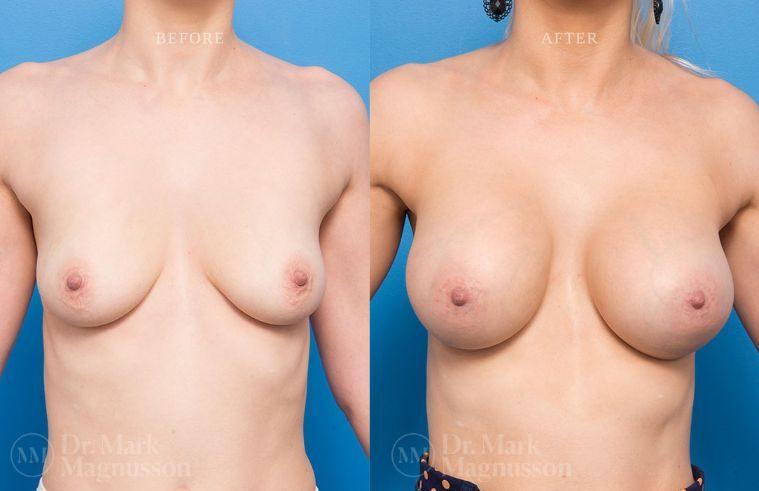 BAM-low_nipple_009
