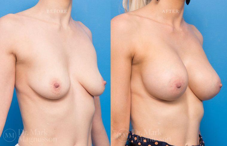 BAM-low_nipple_010