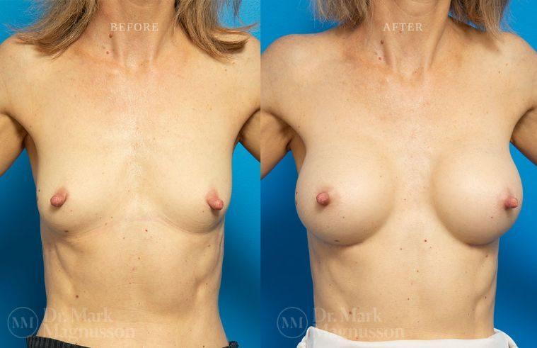 BAM-low_nipple_011