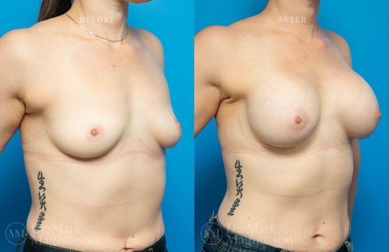 BAM-low_nipple_015