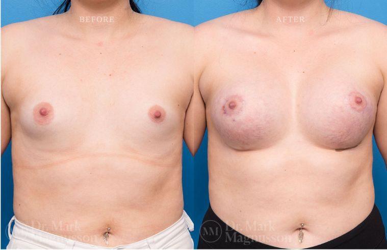 Breast_Asymmetry-breast_implants_002