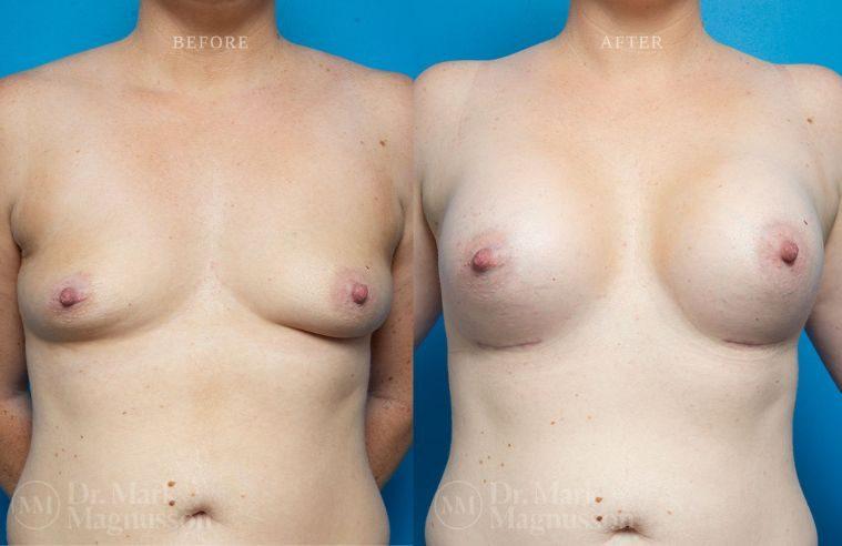 Breast_Asymmetry-breast_implants_004